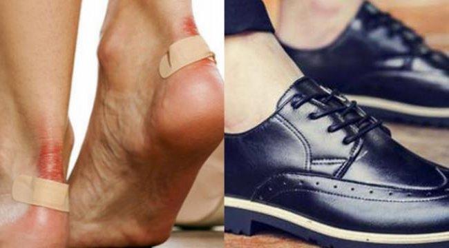 Dar gelen ayakkabılar nasıl genişletilir