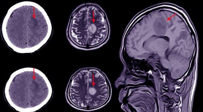 Hidrosefali (beyinde su toplaması) nedir?
